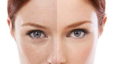 Klinična dermatologija
