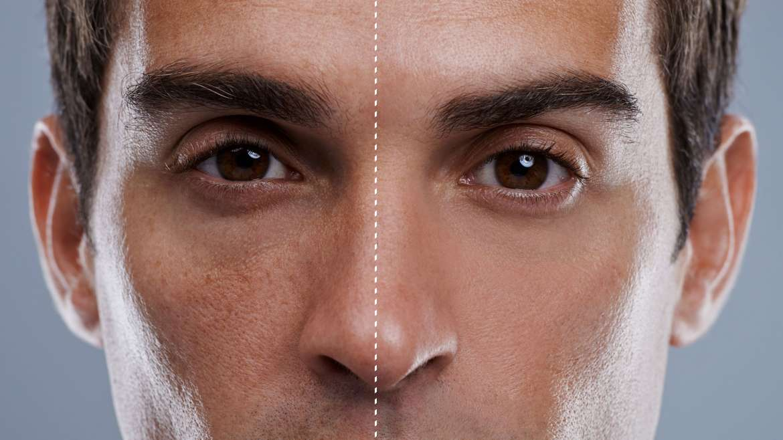 Kirurgija kože in laser