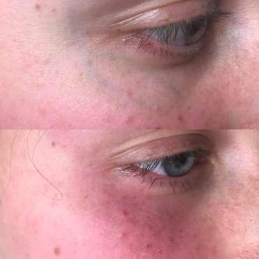 žilice okrog oči laser