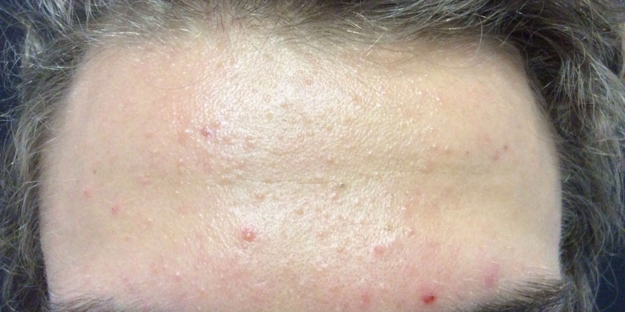 akne zdravljenje aken