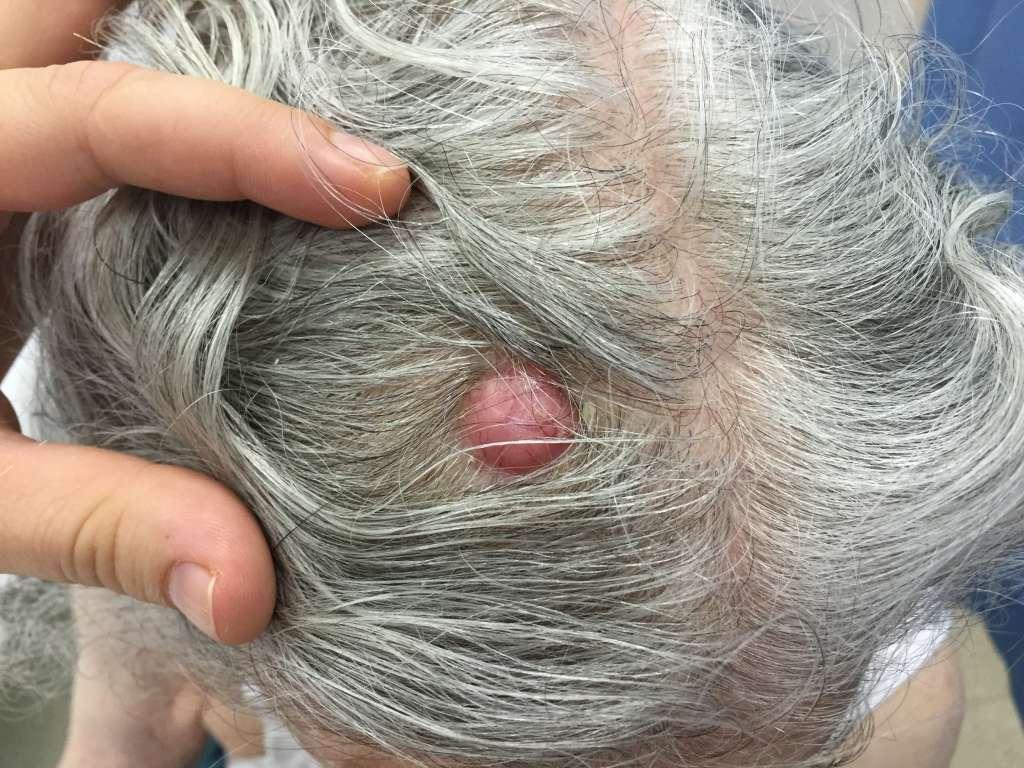bazalnocelični karcinom bazaliom