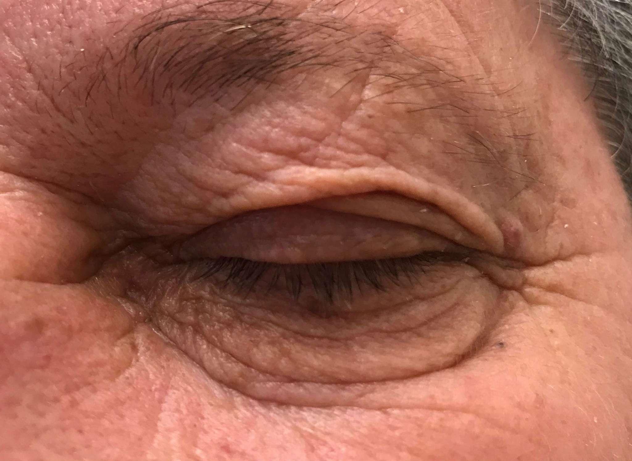 fibrom odstranjevanje kožnih izrastkov