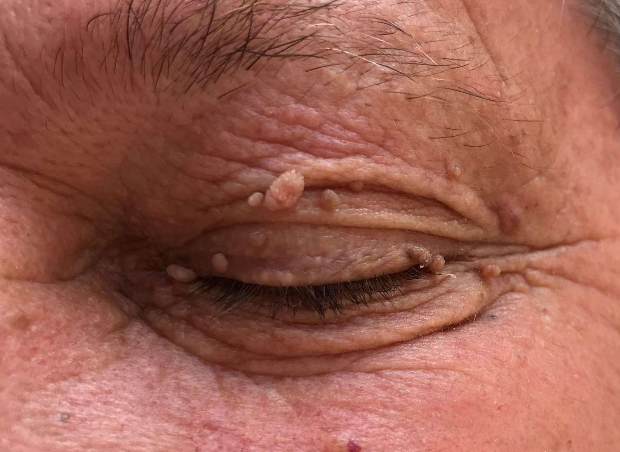 pecljati fibrom odstranjevanje kožnih izrastkov