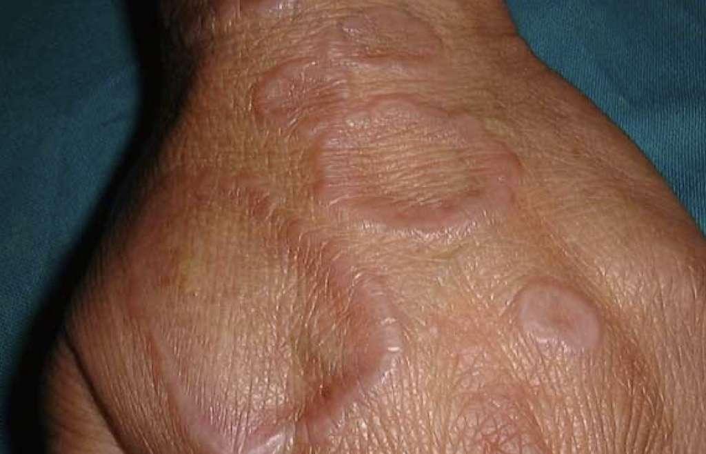 Anularni granulom (obročasti granulom, granuloma annulare)