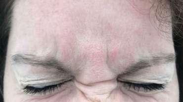 gube med obrvmi glajenje gub botoks na obrazu