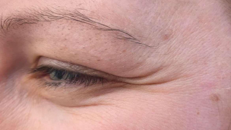 Gube okrog oči