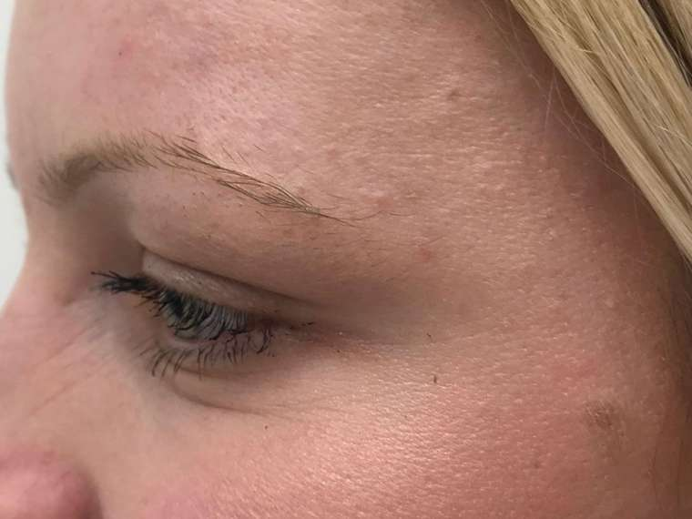 gube okrog oči račje tačke botoks