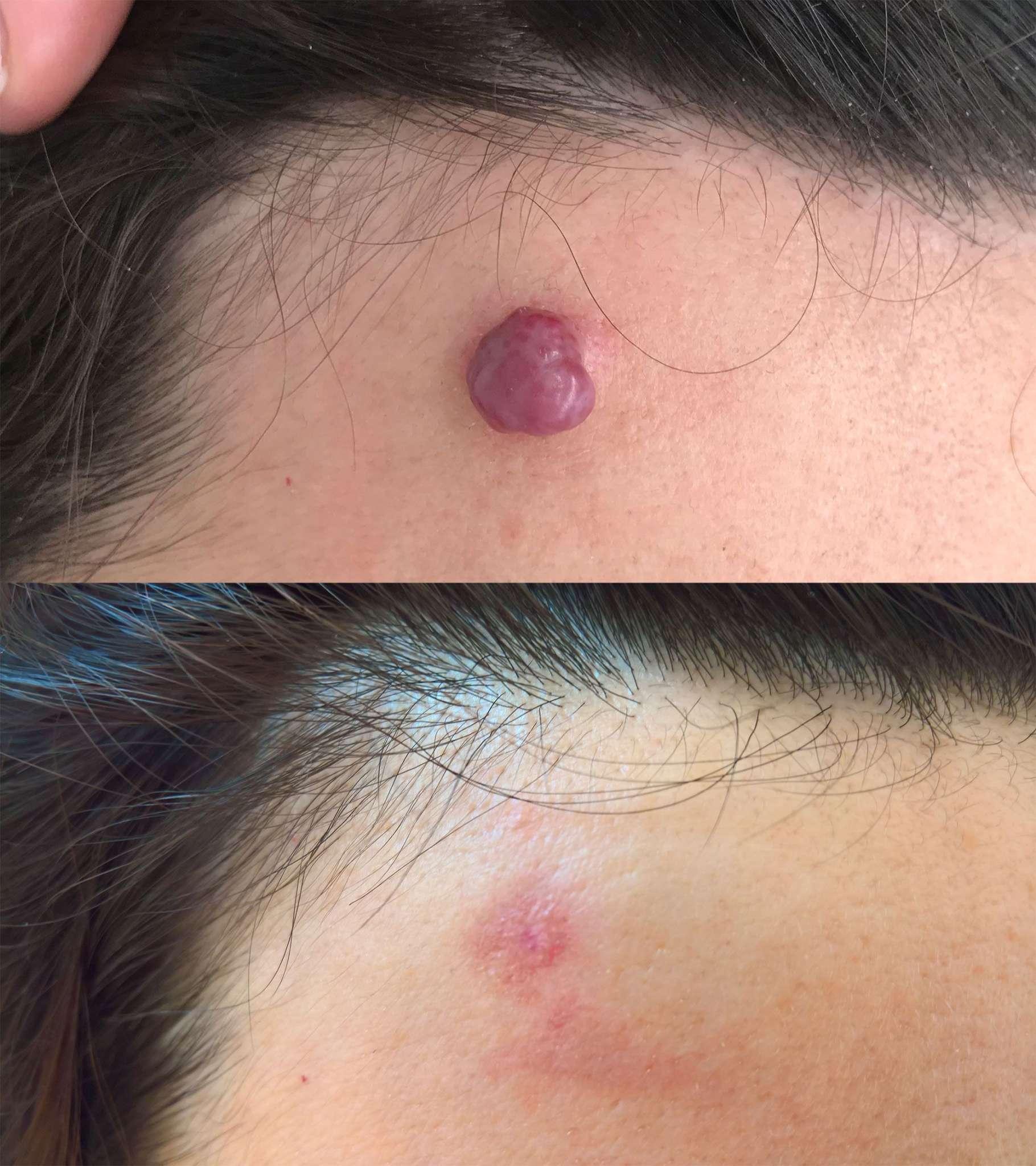 hemangiomi hemangiom pred in po odstranitvi z laserjem