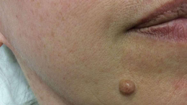 Navodila za paciente po odstranitvi kožnih izrastkov