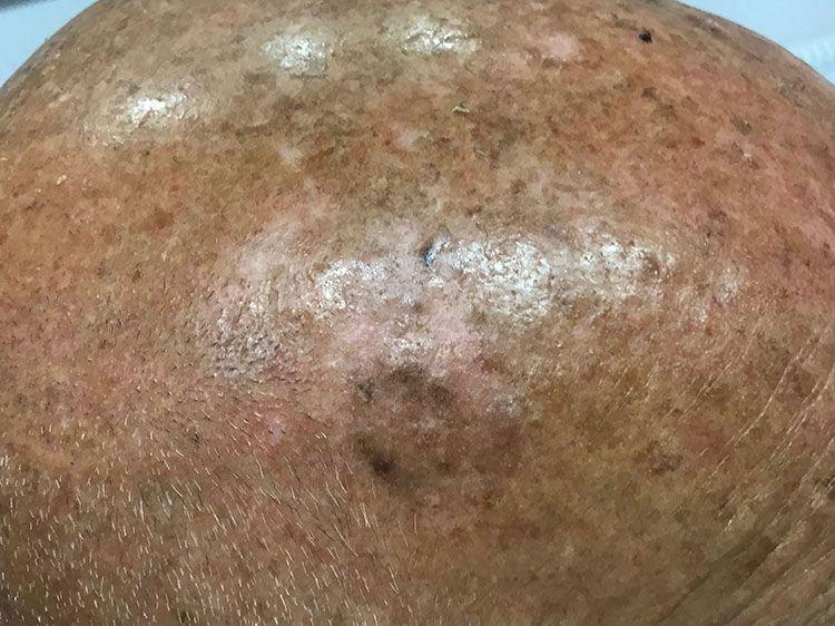 seboroična keratoza