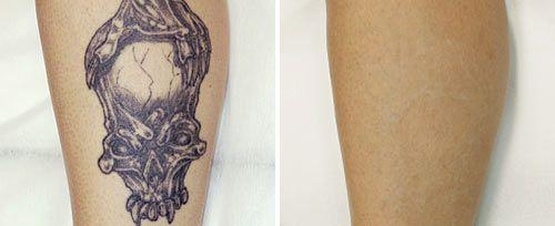lasersko odstranjevanje tetovaž tattooja tattoo