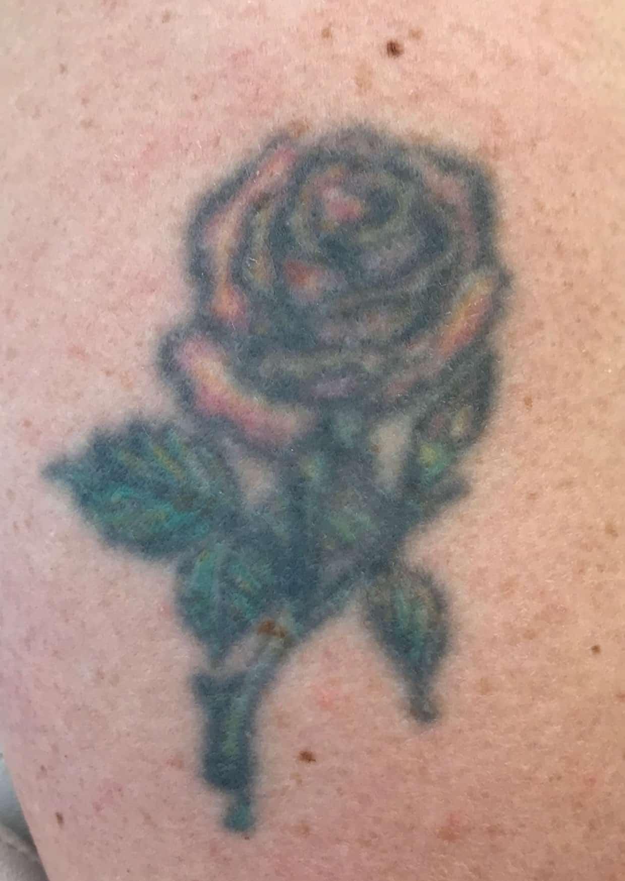 Lasersko odstranjevanje tetovaž tatuja tattoo tatu