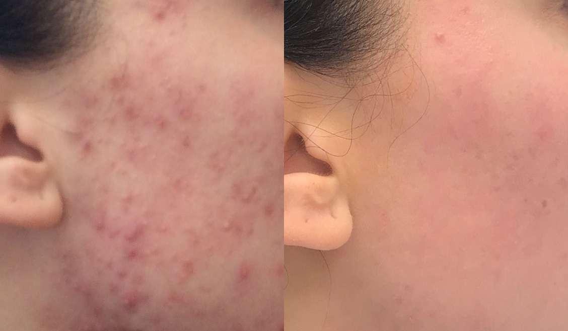 Dr. Vesna Tlaker: akne so bolezen kože, ki jo lahko učinkovito obvladamo