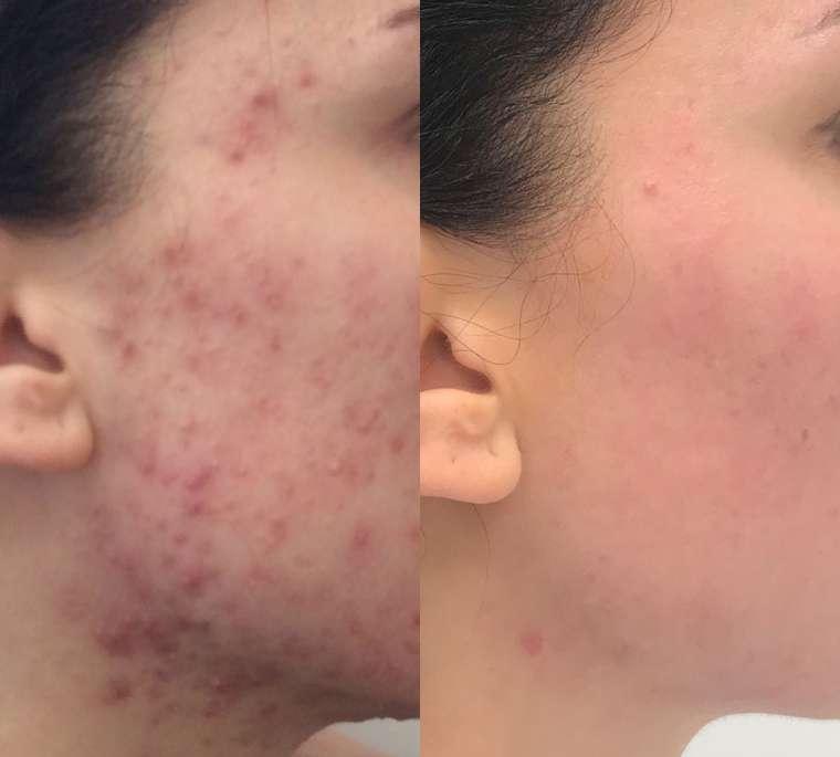mozolji akne na obrazu zdravljenje aken prej potem