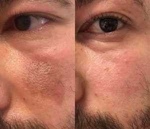 pigmentacije obraz hiperpigmentacije opeklina melazma