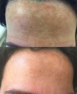 Melazma pigmentacije