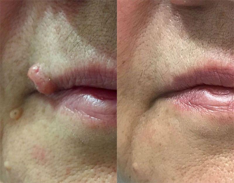 odstranjevanje kožnih izrastkov bradavica dermalni nevus obraz