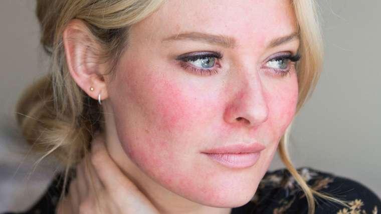 Rozacea: bolezen kože, ki jo lahko učinkovito ublažimo