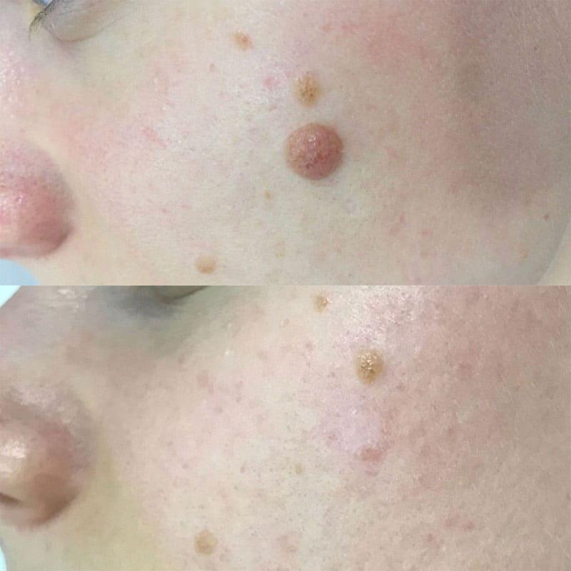 dermalni nevus odstranjevanje kožnih izrastkov