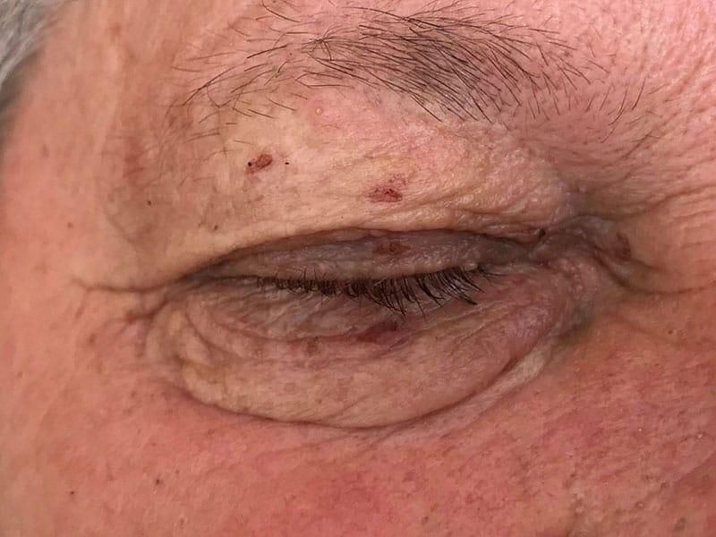 pecljati fibrom na veki odstranitev laser