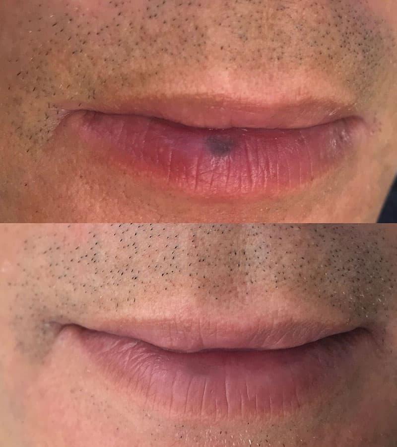 Pigmentacija melanotična makula odstranjevanje laser