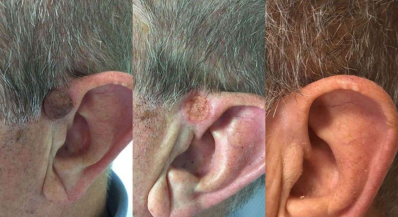 Dermalni nevus odstranjevanje izrastkov znamenj laser
