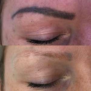 Po treh terapijah laserskega odstranjevanja tetovaže obrvi