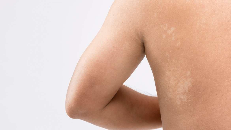 "Pityriasis versicolor – ""kožna plesen"""